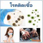 โรคติดเชื้อ โรคที่เกิดจากการติดเชื้อโรค การรักษาโรคติดเชื้อ ติดเชื้อโรค