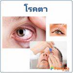 โรคตา โรคเกี่ยวกับตา โรคทางตา โรคการมองเห็น
