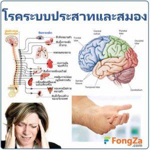 โรคระบบประสาทและสมอง โรคระบบประสาท โรคสมอง โรคเกี่ยวกับสมอง