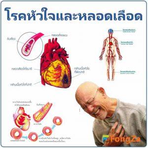 โรคหลอดเลือดหัวใจ โรคหัวใจ โรคหัวใจและหลอดเลือด โรคต่างๆ