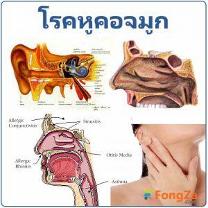 โรคหูคอจมูก โรคโสต โรคศอ โรคนาสิก