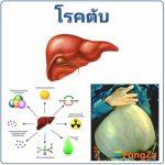 โรคตับ โรคเกี่ยวกับตับ การรักษาโรคตับ สาเหตุของโรคตับ