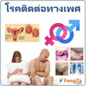 โรคติดต่อทางเพศสัมพันธ์ ติดเชื้อที่อวัยวะเพศ โรคจากการมีเพศสัมพันธ์ โรคจากการมีเซ็กซ์