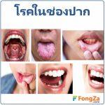 โรคในช่องปาก โรคเหงือก โรคฟัน โรคลิ้น