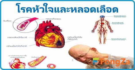 โรคหัวใจ โรคหลอดเลือด โรคหัวใจและหลอดเลือด