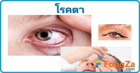 โรคตา โรคดวงตา โรคสายตา โรคน่ารู้