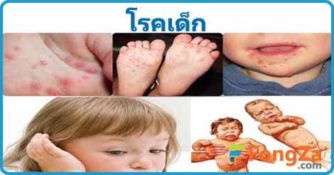 โรคเด็ก โรคน่ารู้ โรคต่างๆ