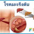 โรคมะเร็งตับ ปวดท้องชายโครงขวาบน เบื่ออาหาร ต้องรักษาอย่างไร