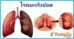 มะเร็งปอด การรักษามะเร็งปอด โรคมะเร็ง โรคจากบุหรี่