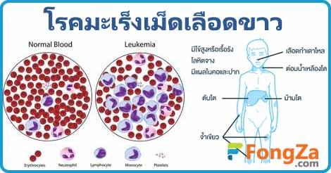 มะเร็งเม็ดเลือดขาว ลูคีเมีย โรคมะเร็ง รักษาลูเคีเมีย