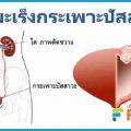 มะเร็งกระเพาะปัสสาวะ ปัสสาวะเป็นเลือด ปวดหลัง เกิดจากอะไร