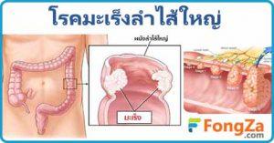 มะเร็งลำไส้ใหญ่ โรคทางเดินอาหาร โรคไม่ติดต่อ โรคมะเร็ง
