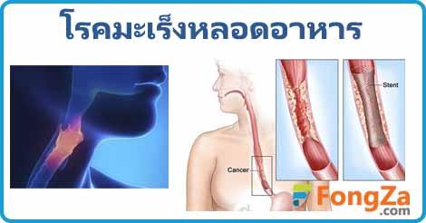 มะเร็งหลอดอาหาร โรคมะเร็ง โรคไม่ติดต่อ โรคทางเดินอาหาร