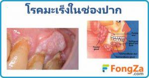 มะเร็งช่องปาก โรคมะเร็ง มะเร็งในช่องปาก โรคไม่ติดต่อ