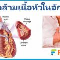 โรคกล้ามเนื้อหัวใจอักเสบ เจ็บหน้าอก หายใจไม่ออก เกิดจากการติดเชื้อ