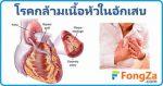กล้ามเนื้อหัวใจอักเสบ โรคหัวใจ โรคติดเชื้อ โรคหัวใจอักเสบ