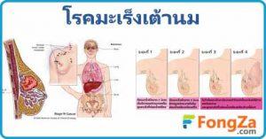 มะเร็งเต้านม โรคมะเร็ง โรคสตรี การรักษามะเร็งเต้านม