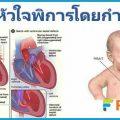 โรคหัวใจพิการแต่กำเนิด โรคเด็ก เกิดจากอะไร รักษาอย่างไร