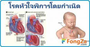 หัวใจพิการโดยกำเนิด โรคเด็ก โรคหัวใจ โรคหัวใจพิการแต่กำเนิด
