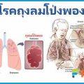 โรคถุงลมโป่งพอง เตืิอนภัยคนสูบบุหรี่ การรักษาและการป้องกัน