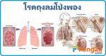 โรคถุงลมโป่งฟอง โรคปอด โรคระบบทางเดินหายใจ โรคไม่ติดต่อ