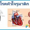 โรคหัวใจรูมาติก โรคหัวใจพบมากในเด็ก เกิดจากอะไร รักษาอย่างไร