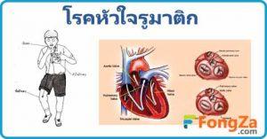 โรคหัวใจรูมาติก ไข้รูมาติก ลิ้นหัวใจอักเสบ โรคหัวใจ