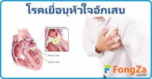เยื่อบุหัวใจอักเสบ โรคหัวใจอักเสบ ติดเชื้อในกระแสเลือด