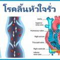 โรคลิ้นหัวใจรั่ว อาการเหนื่อยง่าย อ่อนเพลีย มีโอกาสเสี่ยงโรค