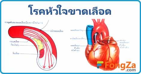 หัวใจขาดเลือด กล้ามเนื้อหัวใจขาดเลือด โรคหัวใจ
