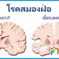 โรคสมองฝ่อ เนื้อสมองลดลง ความจำลดลง หลงๆลืมๆ รักษาอย่างไร