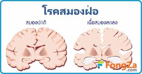โรคสมองฝ่อ โรคสมอง การรักษาสมองฝ่อ ความจำเสื่อม
