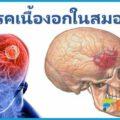โรคเนื้องอกในสมอง อาการปวดหัวอย่างรุนแรง แขนขาอ่อนแรง