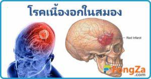 เนื้องอกในสมอง โรคสมอง โรคเนื้องอก โรคไม่ติดต่อ