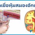 เยื่อหุ้มสมองอักเสบ ปวดหัวอย่างรุนแรง สาเหตุจากการติดเชื้อโรค