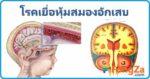 เยื่อหุ้มสมองอักเสบ โรคสมอง สมองติดเชื้อ โรคเยื่อหุ้มสมองอักเสบ