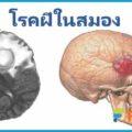 โรคฝีในสมอง อุบัติเหตุที่หัวอย่างแรง ติดเชื้อที่สมองจนเกิดฝี