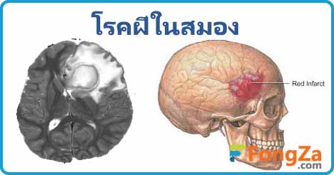 โรคฝีที่สมอง โรคฝีในสมอง โรคติดเชื้อ โรคสมอง