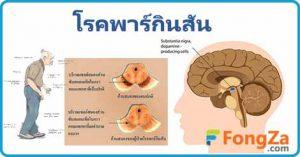 โรคพาร์กินสัน สันนิบาตลูกนก โรคสมอง โรคไม่ติดต่อ