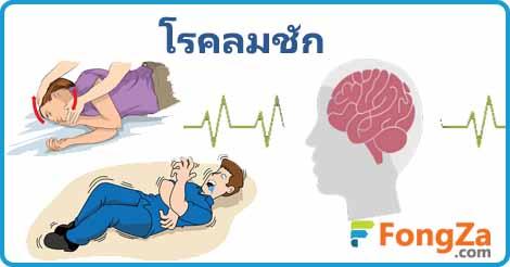 โรคลมชัก โรคลมบ้าหมู โรคสมอง โรคไม่ติดต่อ