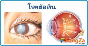 โรคต้อหิน โรคตา โรคไม่ติดต่อ ทำให้ตาบอด