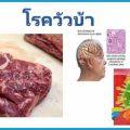 โรควัวบ้า โปรตีนพรีออน ทำลายเนื้อเยื่อสมอง โรคติดเชื้อรุนแรง