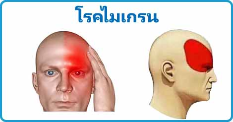 โรคไมเกรน ปวดหัวข้างเดียว โรคสมอง โรคไม่ติดต่อ